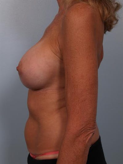 Complex Breast Revision Gallery - Patient 1310701 - Image 4
