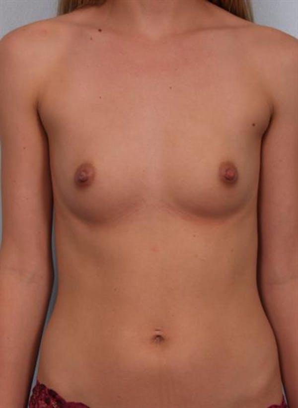 Breast Augmentation Gallery - Patient 1310702 - Image 3