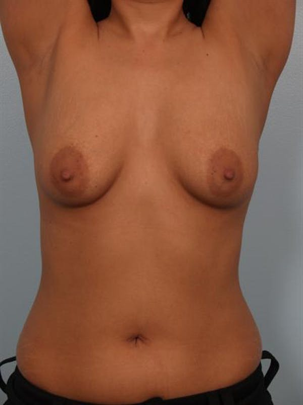 Breast Lift Gallery - Patient 1310700 - Image 5