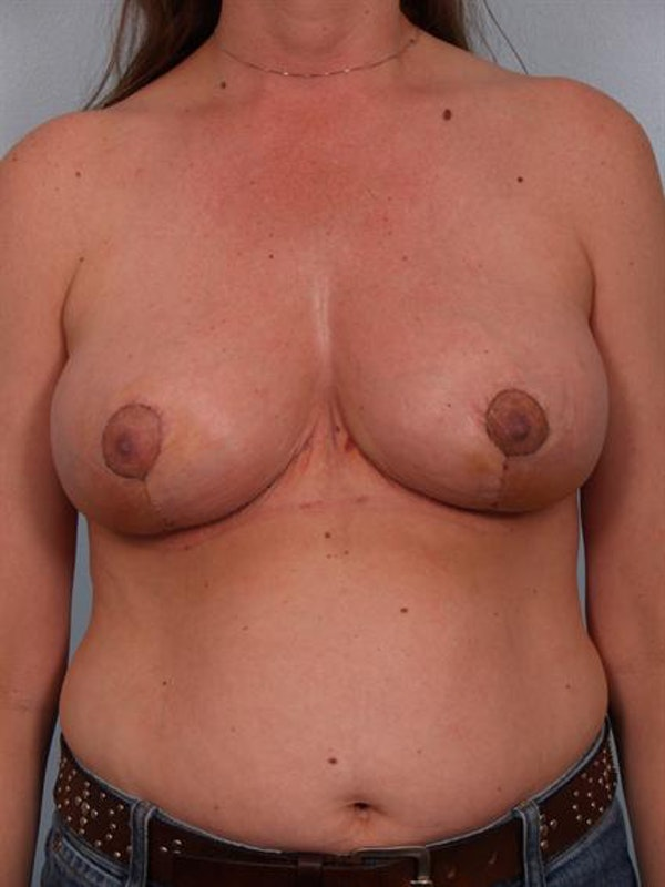 Breast Reduction Gallery - Patient 1310703 - Image 2