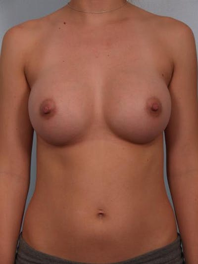 Breast Augmentation Gallery - Patient 1310702 - Image 4