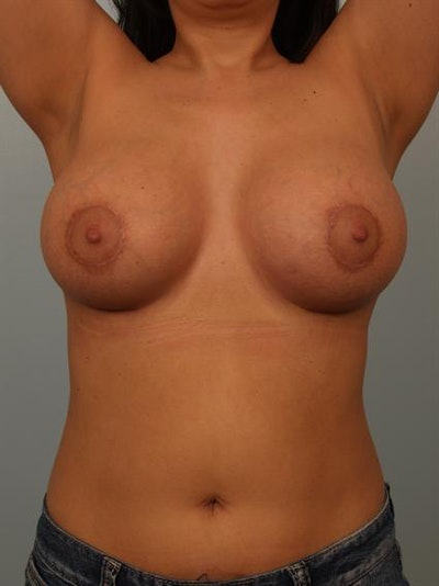 Breast Lift Gallery - Patient 1310700 - Image 6