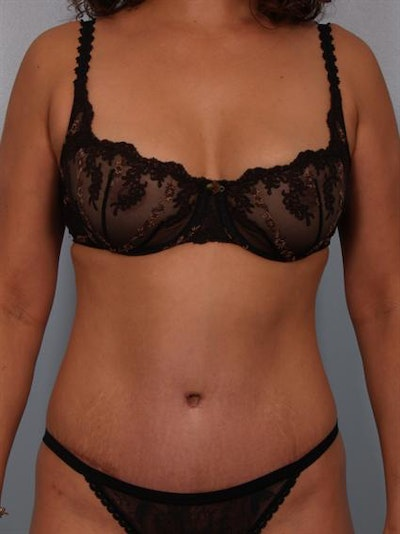 Power Assisted Liposuction Gallery - Patient 1310705 - Image 2