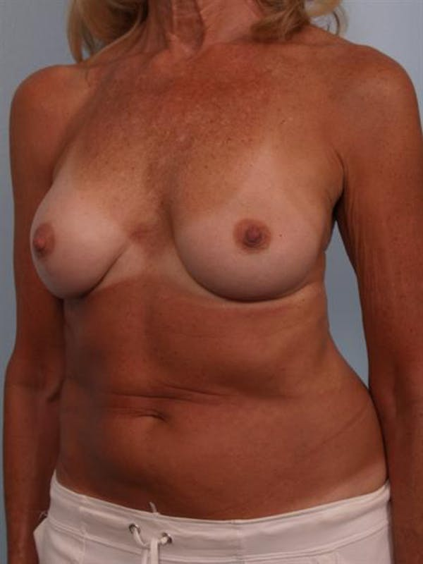 Complex Breast Revision Gallery - Patient 1310701 - Image 5