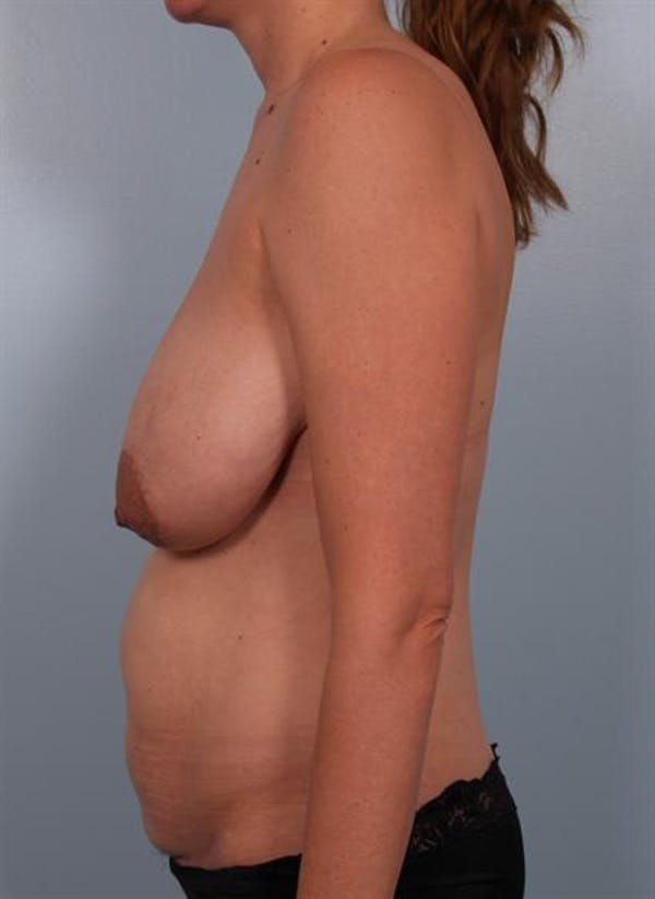 Breast Reduction Gallery - Patient 1310703 - Image 3