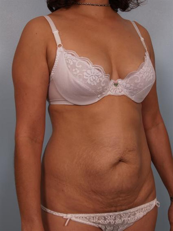 Power Assisted Liposuction Gallery - Patient 1310705 - Image 3