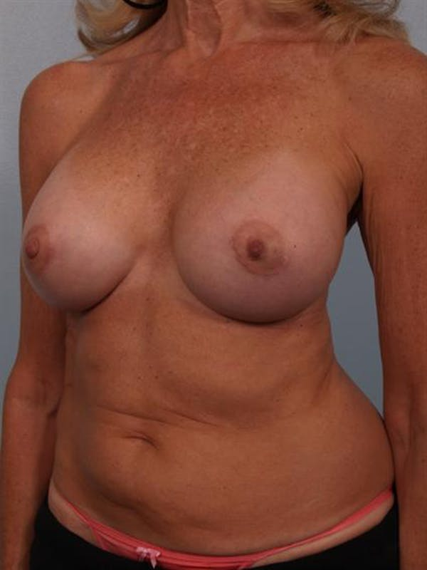 Complex Breast Revision Gallery - Patient 1310701 - Image 6