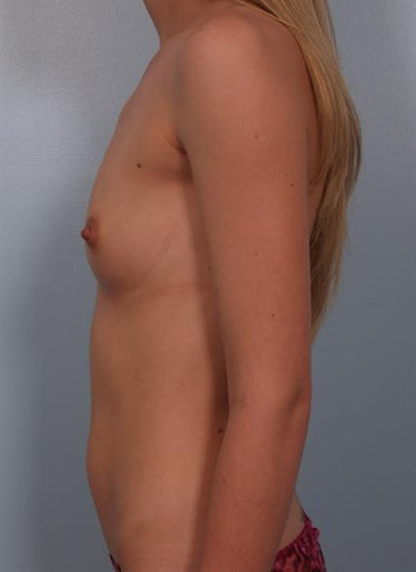 Breast Augmentation Gallery - Patient 1310702 - Image 5