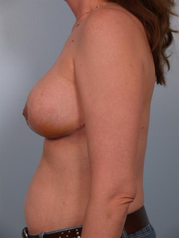 Breast Reduction Gallery - Patient 1310703 - Image 4