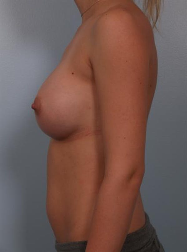 Breast Augmentation Gallery - Patient 1310702 - Image 6