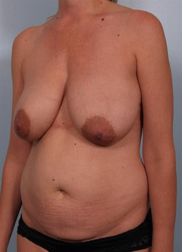 Breast Reduction Gallery - Patient 1310703 - Image 5