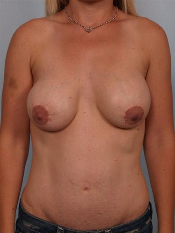 Complex Breast Revision Gallery - Patient 1310707 - Image 1