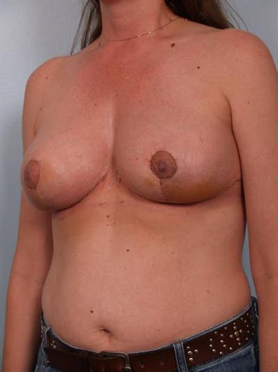 Breast Reduction Gallery - Patient 1310703 - Image 6
