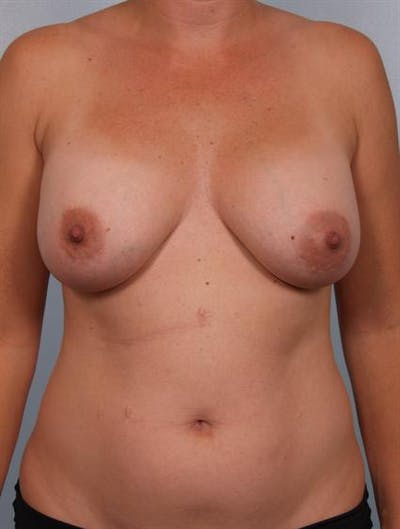 Breast Lift Gallery - Patient 1310706 - Image 1