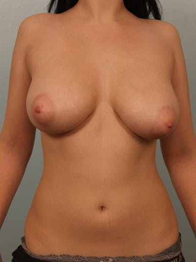 Breast Reduction Gallery - Patient 1310708 - Image 1