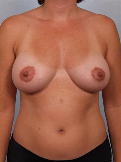 Breast Lift Gallery - Patient 1310706 - Image 2