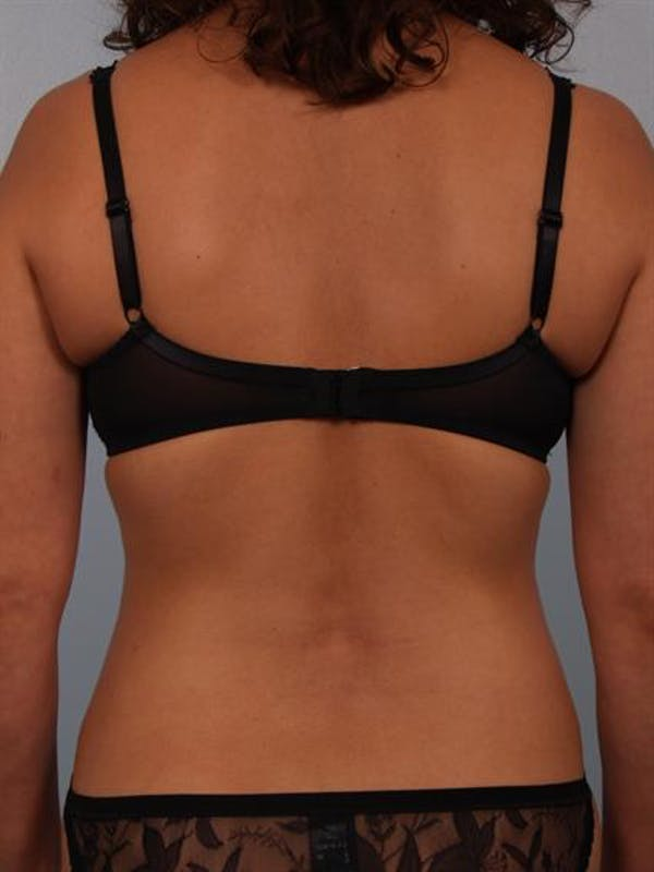 Power Assisted Liposuction Gallery - Patient 1310705 - Image 8