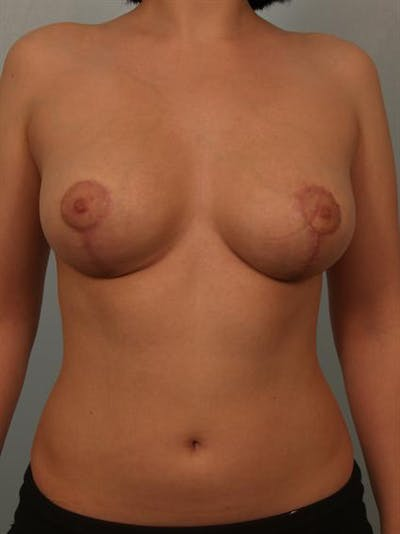 Breast Reduction Gallery - Patient 1310708 - Image 2