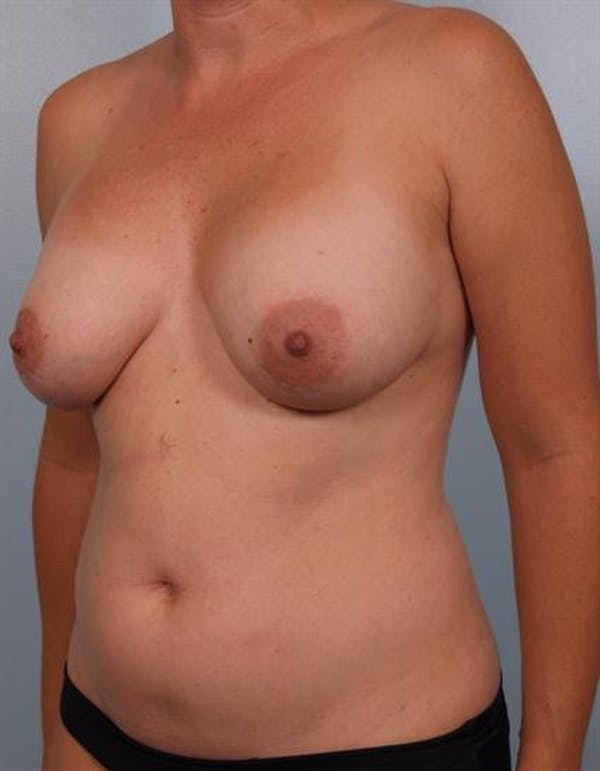 Breast Lift Gallery - Patient 1310706 - Image 5