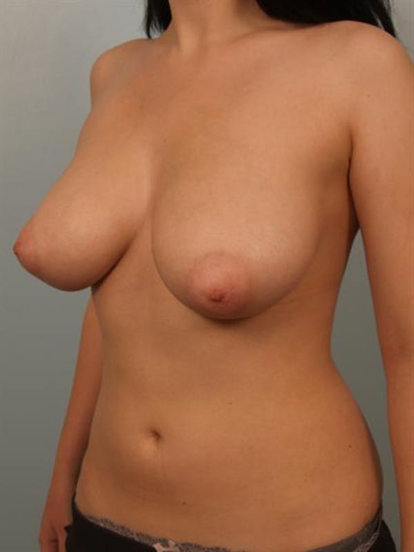 Breast Reduction Gallery - Patient 1310708 - Image 3