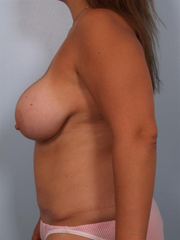 Mommy Makeover Gallery - Patient 1310709 - Image 3