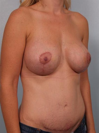 Complex Breast Revision Gallery - Patient 1310707 - Image 6