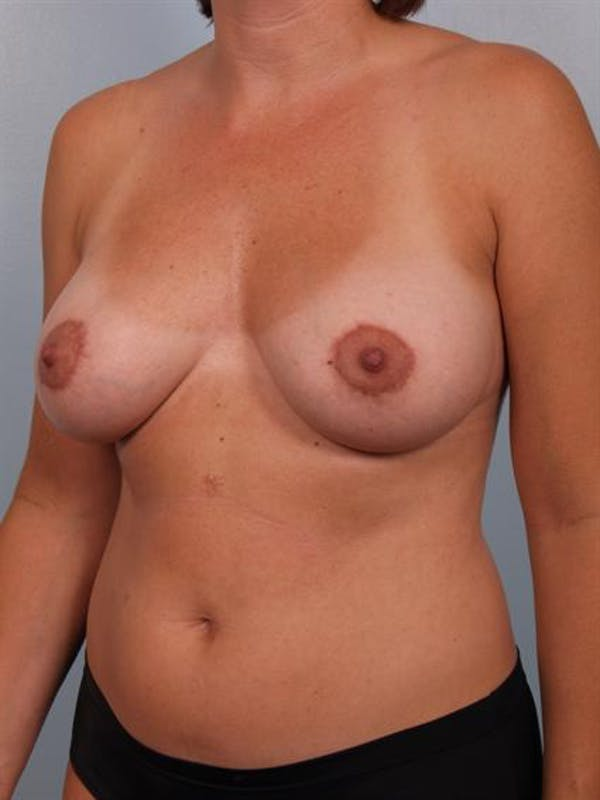 Breast Lift Gallery - Patient 1310706 - Image 6