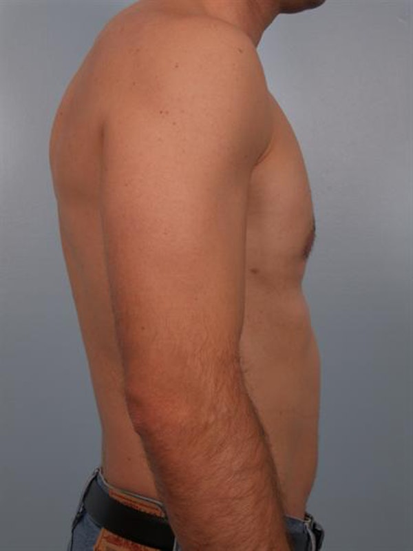 Power Assisted Liposuction Gallery - Patient 1310710 - Image 2