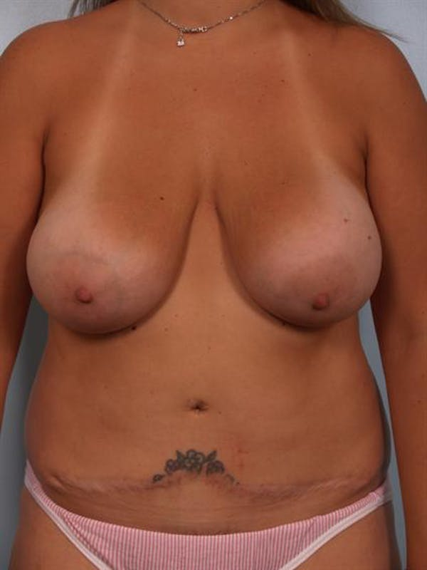 Mommy Makeover Gallery - Patient 1310709 - Image 1