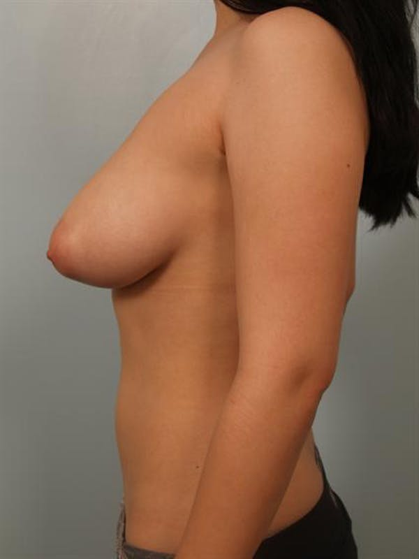 Breast Reduction Gallery - Patient 1310708 - Image 5