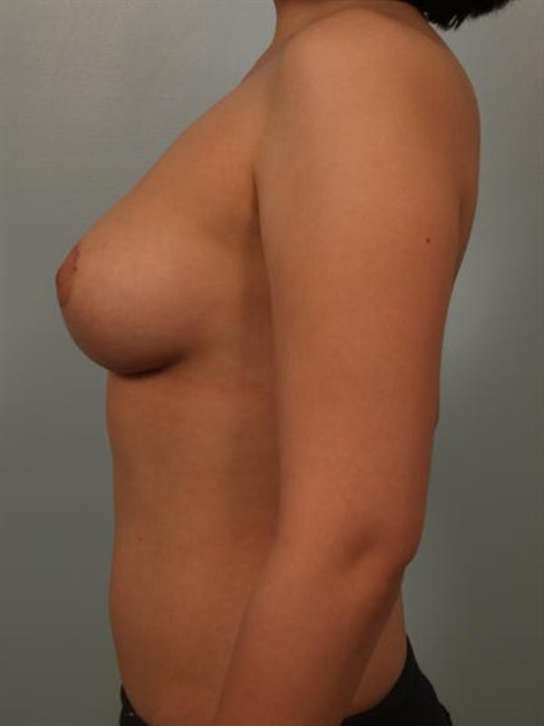 Breast Reduction Gallery - Patient 1310708 - Image 6