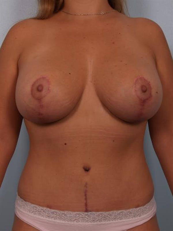 Mommy Makeover Gallery - Patient 1310709 - Image 2