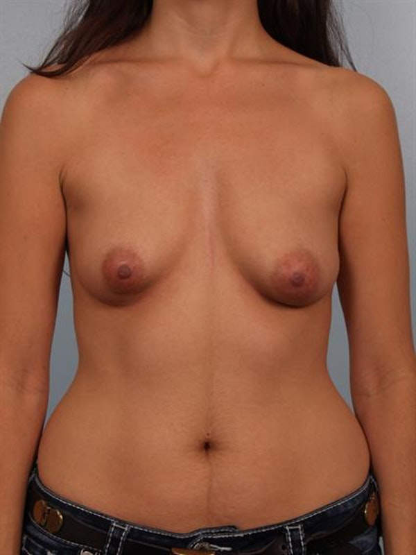 Breast Lift Gallery - Patient 1310712 - Image 1