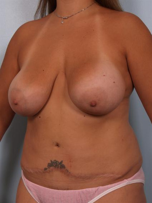 Mommy Makeover Gallery - Patient 1310709 - Image 5