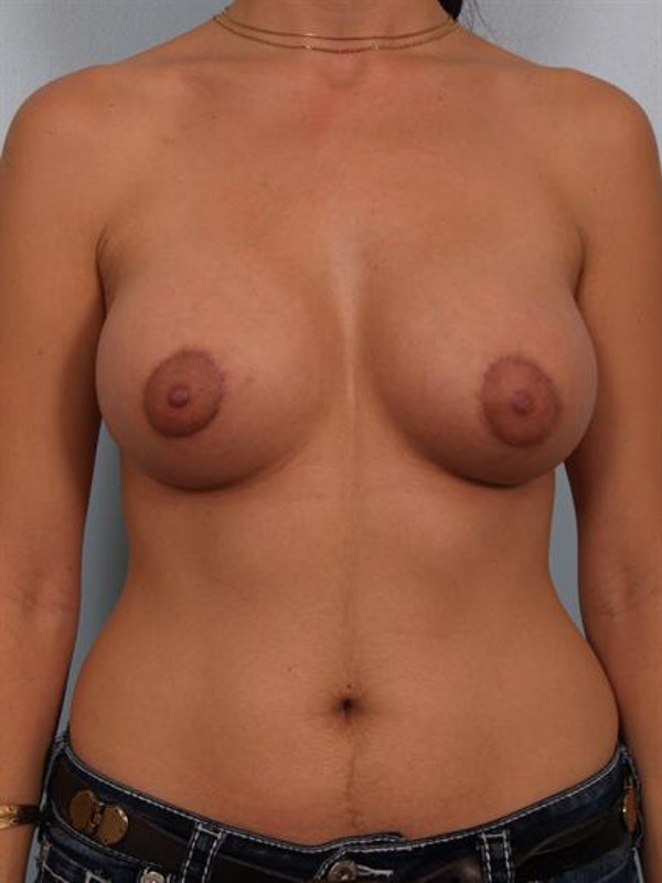 Breast Lift Gallery - Patient 1310712 - Image 2