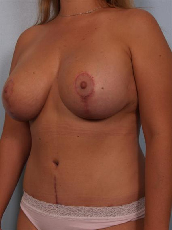 Mommy Makeover Gallery - Patient 1310709 - Image 6