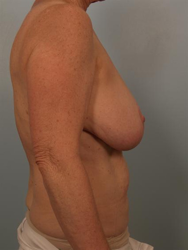 Breast Reduction Gallery - Patient 1310714 - Image 3