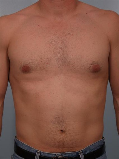 Power Assisted Liposuction Gallery - Patient 1310710 - Image 6