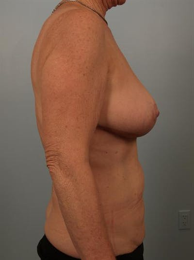 Breast Reduction Gallery - Patient 1310714 - Image 4