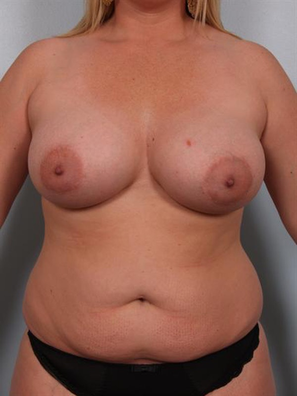 Mommy Makeover Gallery - Patient 1310715 - Image 1
