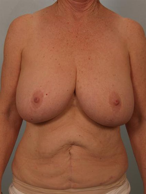Breast Reduction Gallery - Patient 1310714 - Image 1