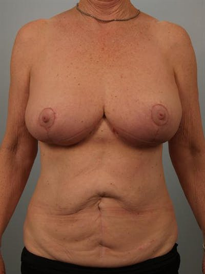 Breast Reduction Gallery - Patient 1310714 - Image 2