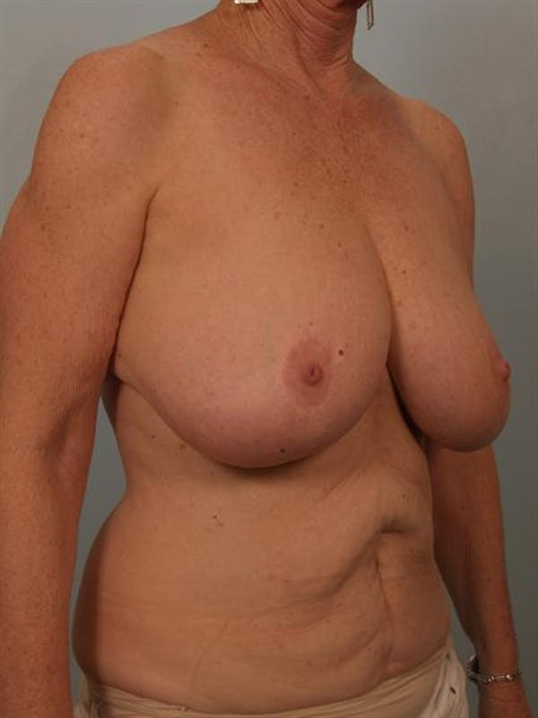 Breast Reduction Gallery - Patient 1310714 - Image 5