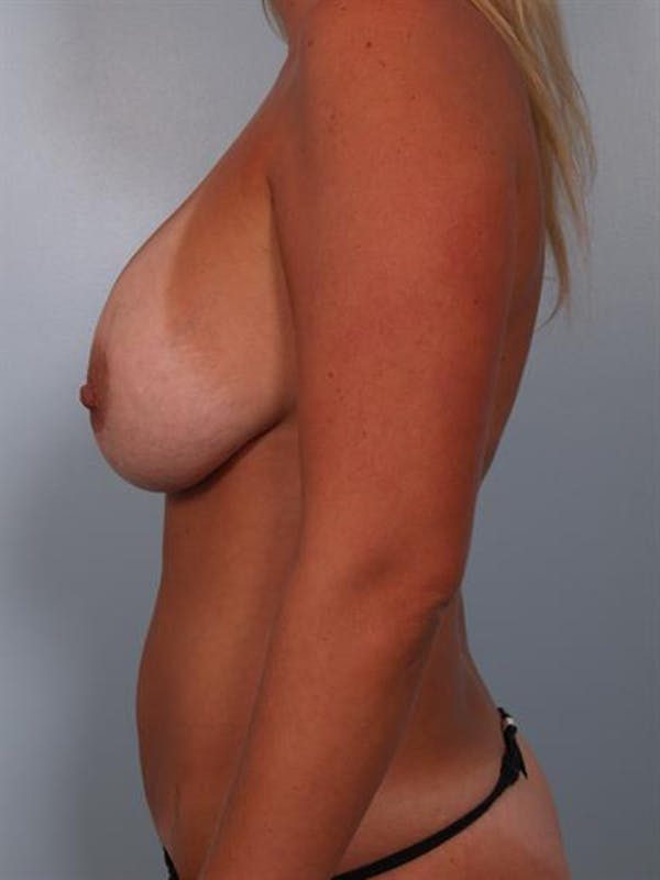 Breast Lift Gallery - Patient 1310717 - Image 3