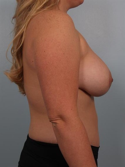 Mommy Makeover Gallery - Patient 1310715 - Image 4