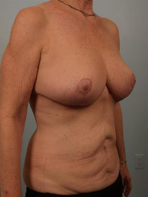 Breast Reduction Gallery - Patient 1310714 - Image 6