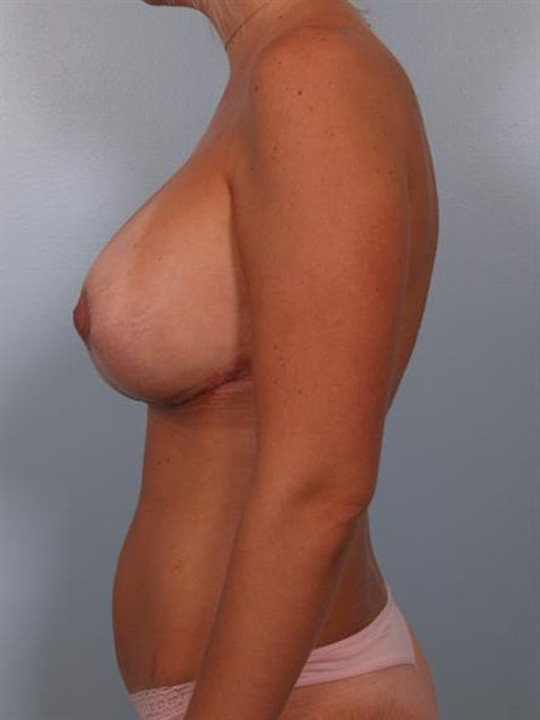 Breast Lift Gallery - Patient 1310717 - Image 4