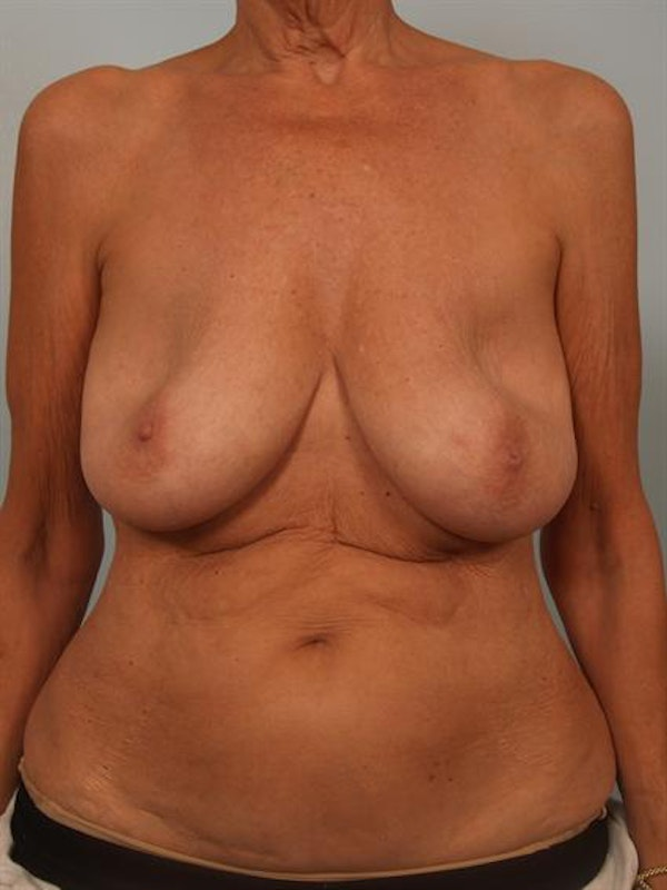 Complex Breast Revision Gallery - Patient 1310718 - Image 1