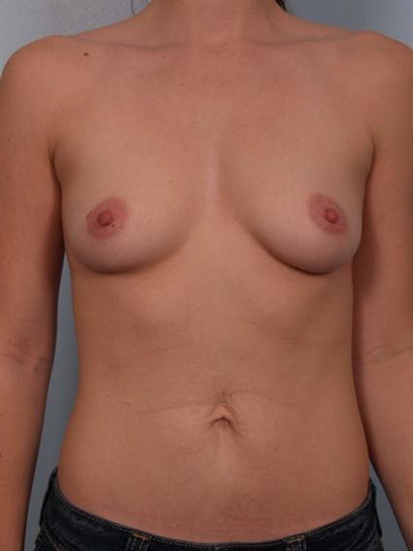 Breast Augmentation Gallery - Patient 1310719 - Image 1