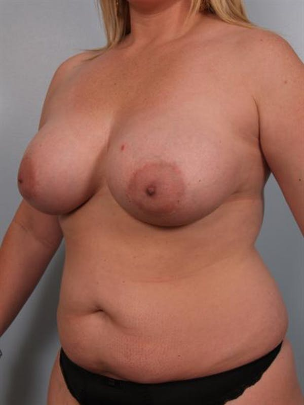 Mommy Makeover Gallery - Patient 1310715 - Image 5